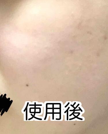桜雪の雫。/Shiro no Sakura./美肌サプリメントを使ったクチコミ(3枚目)