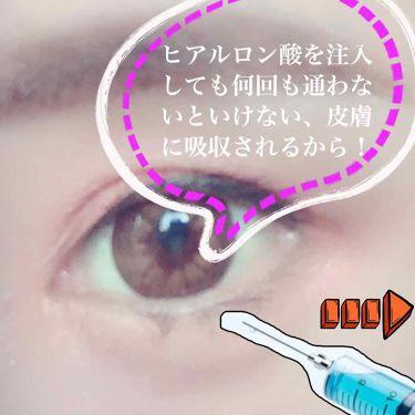 スペシャルワンマイクロパッチ/その他/シートマスク・パックを使ったクチコミ(1枚目)