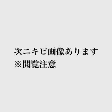 ニキビ治療薬クリーム (医薬品)/クレアラシル/その他を使ったクチコミ(2枚目)