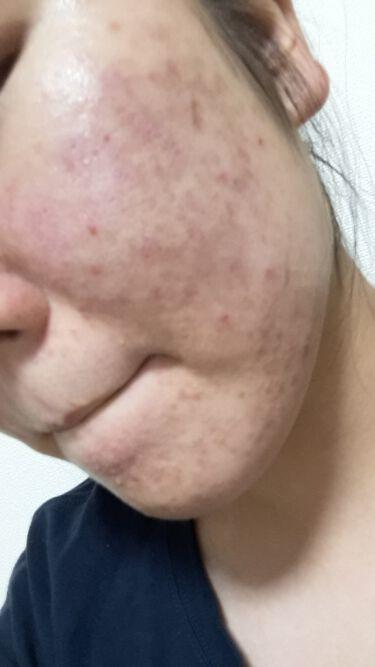 【画像付きクチコミ】初投稿です!はじめまして。びえん丸といいます!顔面ニキビに絶賛お悩み中のJKです!ニキビ歴7年、様々なものを試してきました。プロアクティブ使ったり、ビタミンC飲んだり、皮膚科行ったり…ですがどれもそこまで効果ありませんでした…。保湿が...