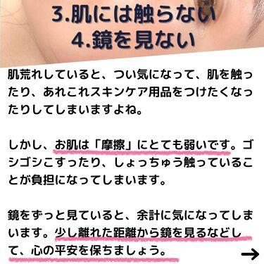 潤浸保湿フェイスクリーム/Curel/フェイスクリームを使ったクチコミ(5枚目)
