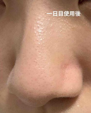 小鼻つるりんクリームパック/毛穴撫子/洗い流すパック・マスクを使ったクチコミ(3枚目)