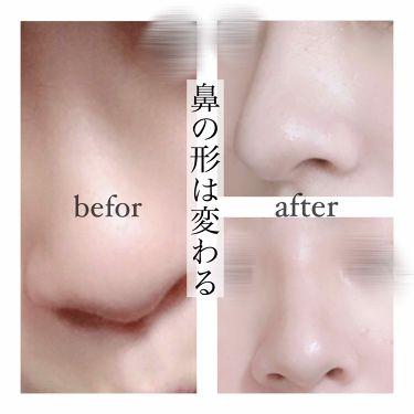 鼻クリップ/ロフトファクトリー/その他を使ったクチコミ(1枚目)
