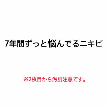 マシュマロホイップ 薬用アクネケア/ビオレ/洗顔フォームを使ったクチコミ(1枚目)