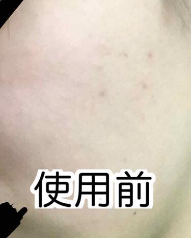 桜雪の雫。/Shiro no Sakura./美肌サプリメントを使ったクチコミ(2枚目)