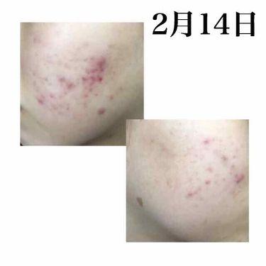 薬用しみ集中対策液/メンソレータム メラノCC/美容液を使ったクチコミ(2枚目)