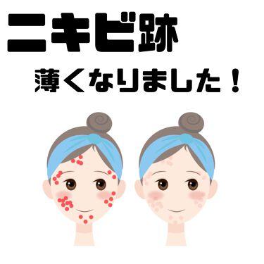 ビタライトビームエッセンシャルマスクE.X./MEDIHEAL/シートマスク・パックを使ったクチコミ(1枚目)