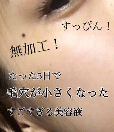 艶肌ドロップ/ラッシュ/美容液を使ったクチコミ(1枚目)