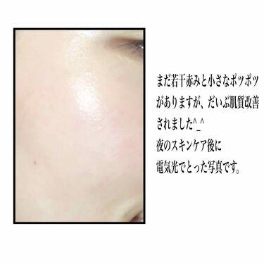 Supple Preparation Facial Toner/Klairs/化粧水を使ったクチコミ(2枚目)