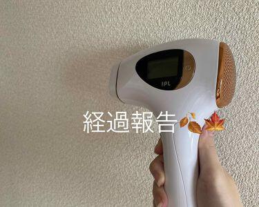 RioRand IPL光脱毛器/RioRand/ボディケア美容家電を使ったクチコミ(1枚目)