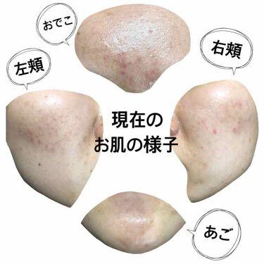 ビーソフテン ローション/持田製薬株式会社/その他スキンケアを使ったクチコミ(4枚目)