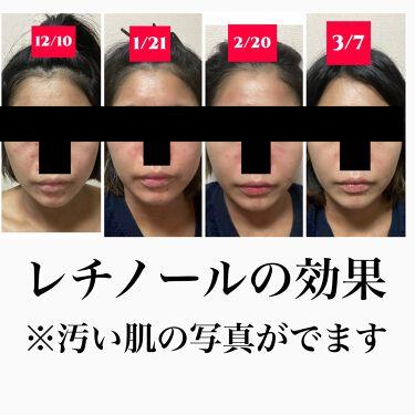 【画像付きクチコミ】●注意この商品は海外から輸入する製品です。悪いレビューもたくさんあり、すべて自己責任となります。肌の調子が悪くなる人もいます。悪くなった場合はすぐに皮膚科へご相談ください。——————————————●私の肌スペック乾燥肌、ニキビ肌、...
