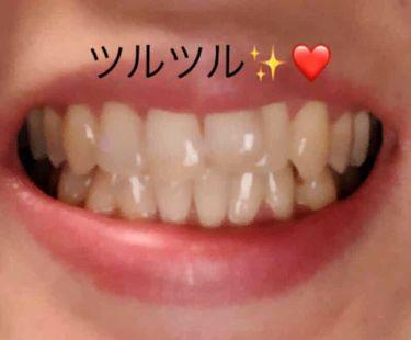 IONPA/その他/歯ブラシ・デンタルフロスを使ったクチコミ(2枚目)