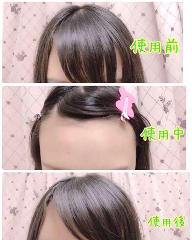 跡が付かない前髪クリップ Ribbon/マペペ/ヘアケアグッズを使ったクチコミ(2枚目)