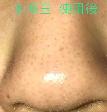 ガスール固形/ナイアード/洗顔フォームを使ったクチコミ(3枚目)