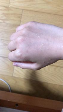 アクアフューチャースキン/いーぼる/スキンケア美容家電を使ったクチコミ(2枚目)