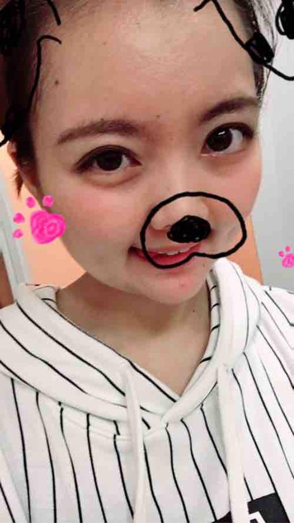 twinkle_lips_q22