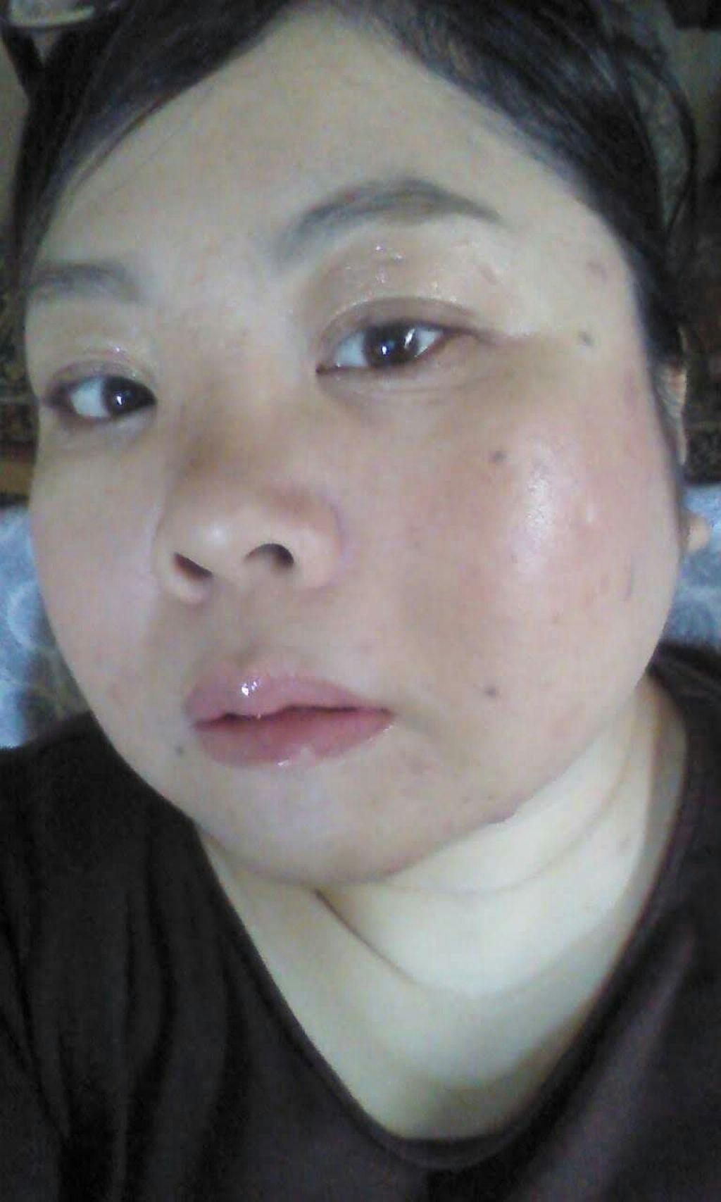 shiny_lips_fwo